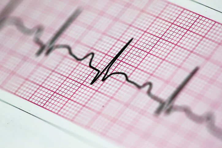 DO I NEED AN ECG?