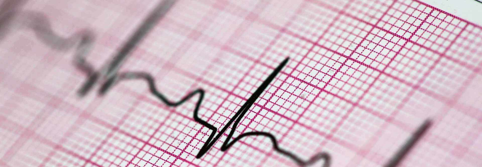 heart rate test | private ECG Test | London Doctors Clinic