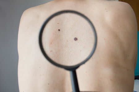 Skin cancer, Dermatology, Too much Sunlight Exposure, Vitamin D